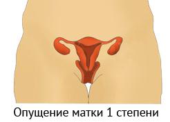 Как развивается бесплодие 1 степени