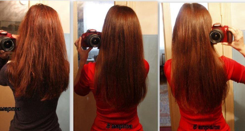 практикуете анальный никотиновая кислота для роста волос это как