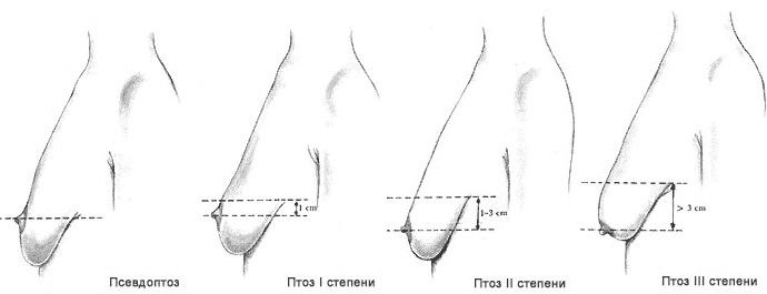 Большие попки и маленькая грудь